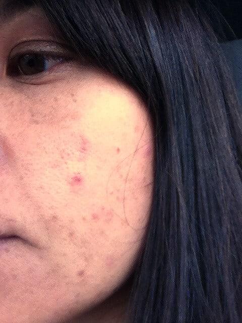 acne-skintervention-before
