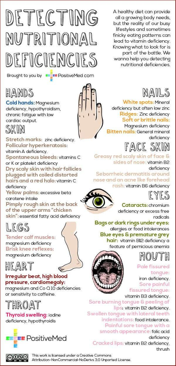 25+ Signs of Nutritional Deficiencies #nutrition #health - DontMesswithMama.com